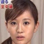 元AKB48前田敦子(あっちゃん)が輪郭のエラ整形で美人化www